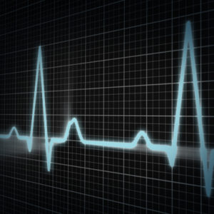 An image of an EKG machine that is measuring someone