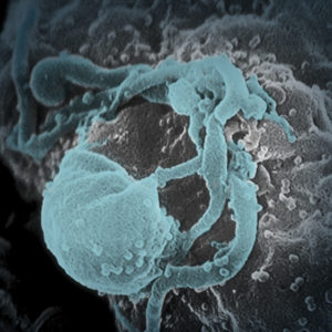 An enhanced image of a Human Immunodeficiency virus attacking a cell